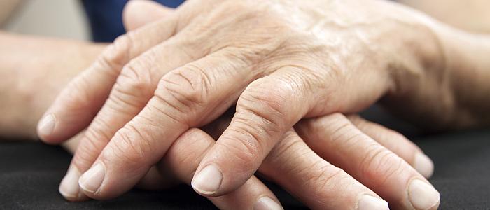 tratamentul simptomelor artrozei brahiale pastile pentru dureri artritice